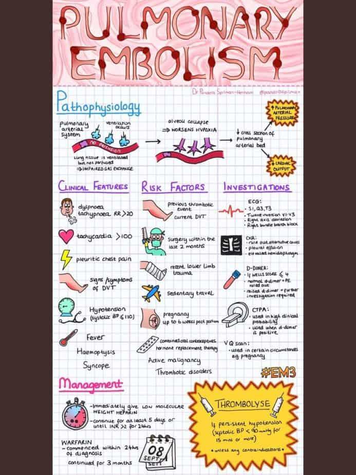 Massive Pulmonary Thromboembolism and Thrombolytics