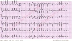 Management of Atrial Fibrillation (AF) with Rapid Ventricular Response (RVR)