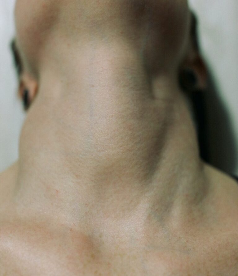 Recognizing and Treating Thyroid Storm