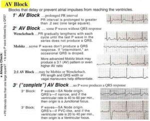 Conduction Blocks at the AV Node (AV Blocks)