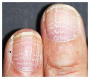 Multiple White Lines on the Fingernails