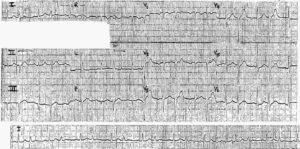 ECG Case 18