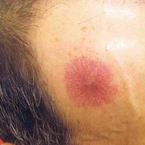 Neovascular Lesion on Face