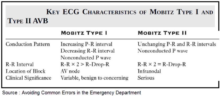 Do Not Confuse Mobitz Type I and Mobitz Type II Atrioventricular (AV) Block