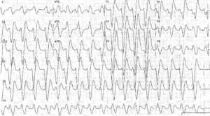Ventricular Tachycardia from Cocaine Overdose