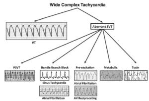 Know the Mimics of Ventricular Tachycardia