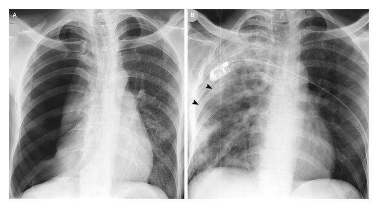 A 50-year-old Smoker with Acute Breathlessness and Right-sided Chest Pain
