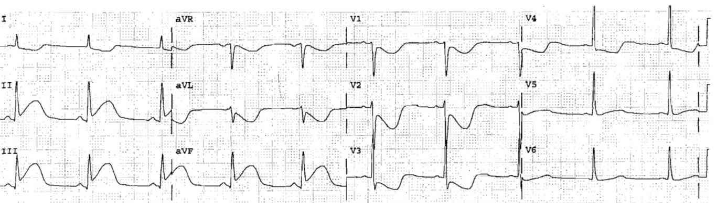 ECG Case 27