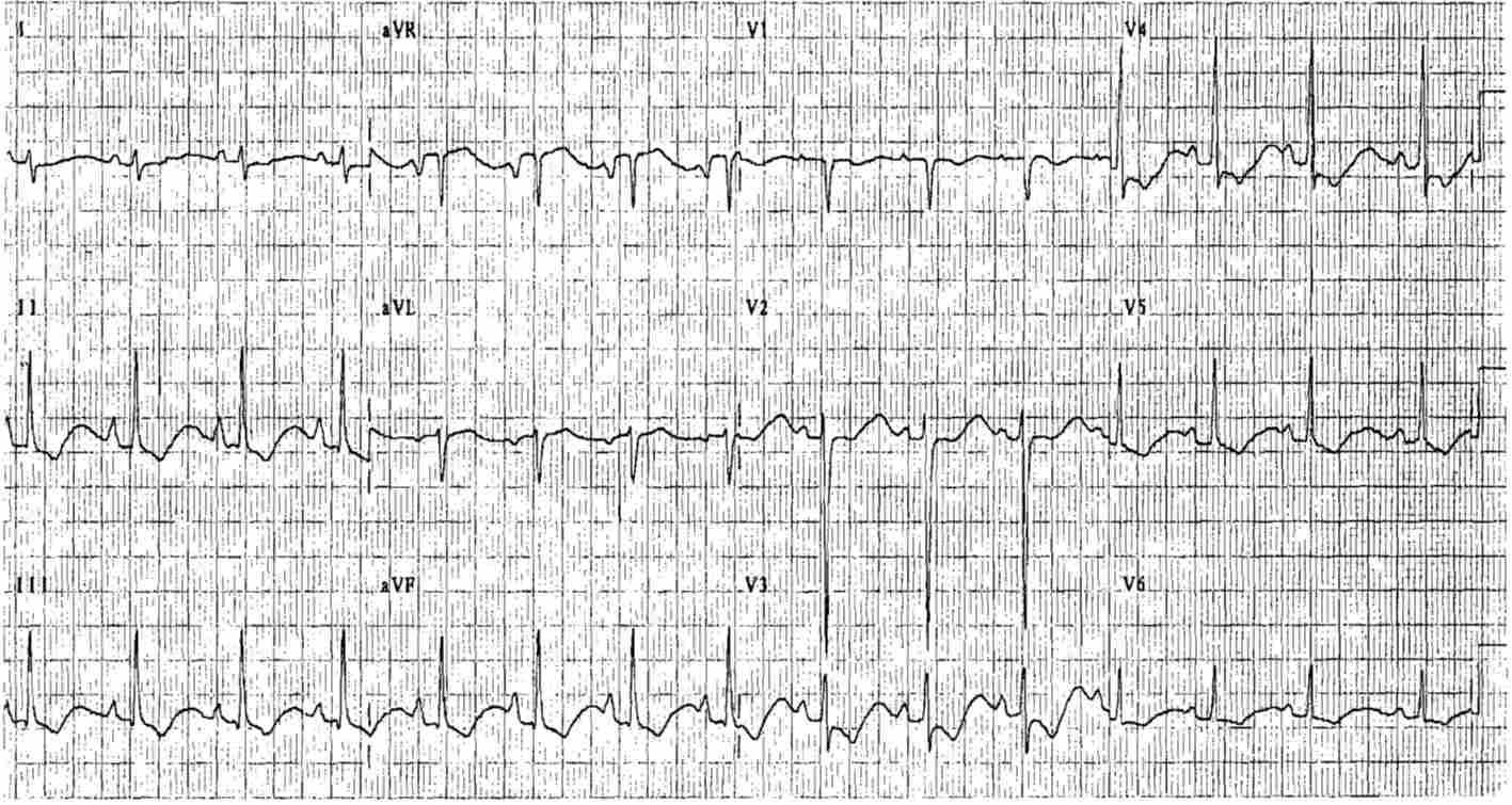 ECG Case 28