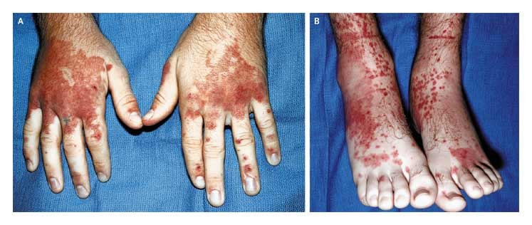 Patient with a 1-day history of fever, symmetric polyarthritis, abdominal pain, and hematemesis