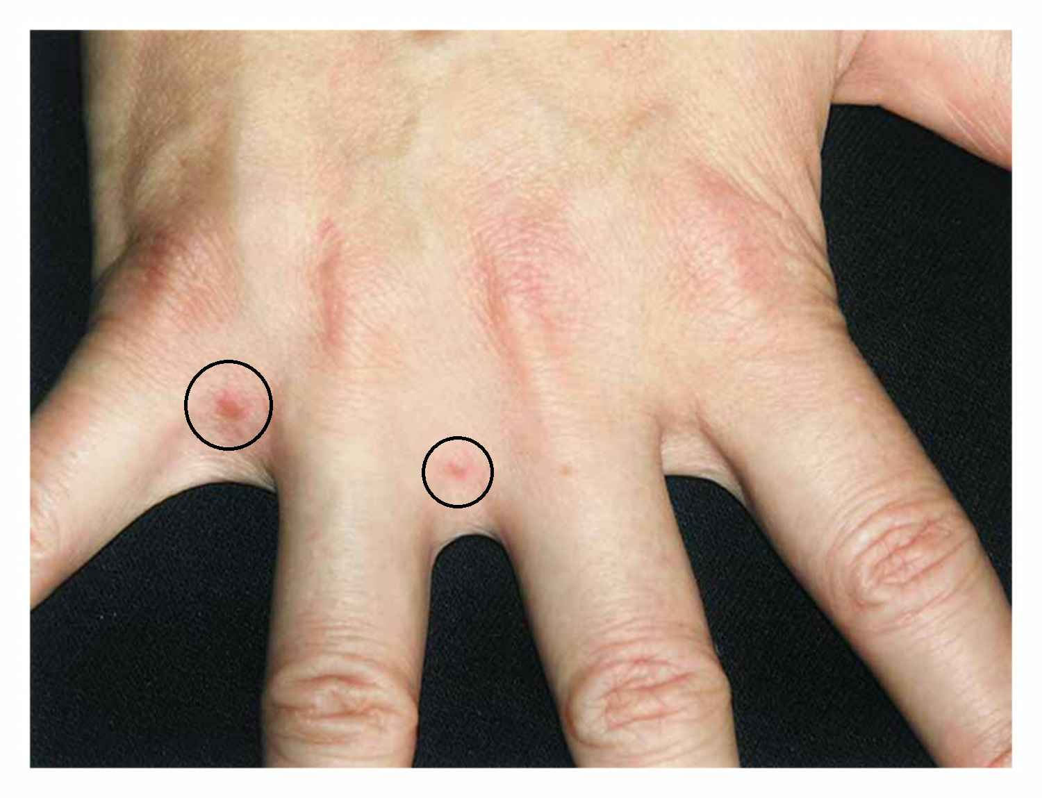 Pruritus and Papular Lesions Between Fingers, Axillae, Groin, and Buttocks