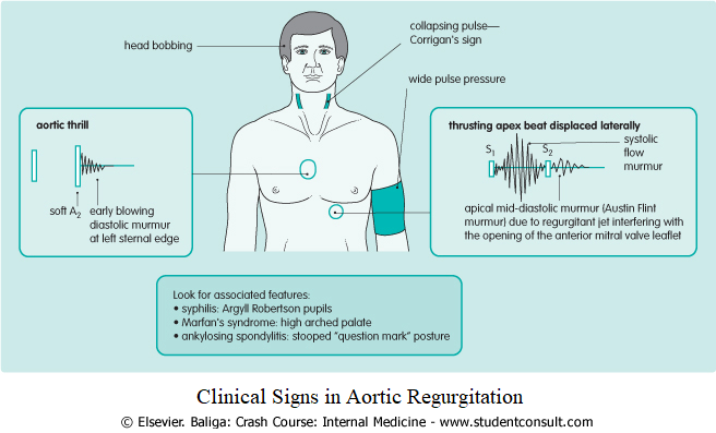 Clinical Signs in Aortic Regurgitation
