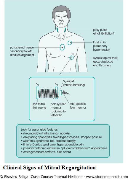 Clinical Signs of Mitral Regurgitation