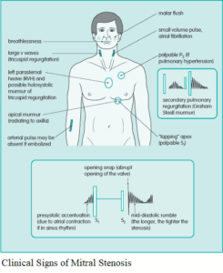 Heart Murmurs – Differential Diagnosis, Examination and Investigations