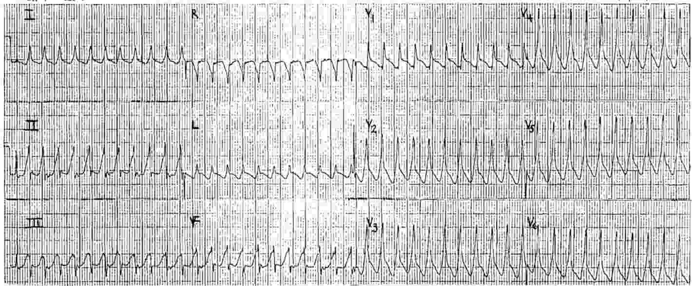 ECG Case 33