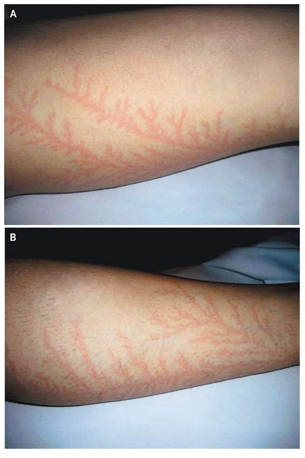 Painless Erythematous Cutaneous Marks in a Fern-Leaf Pattern